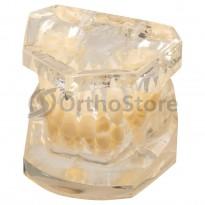 Типодонт без брекетів (нерівні зуби)